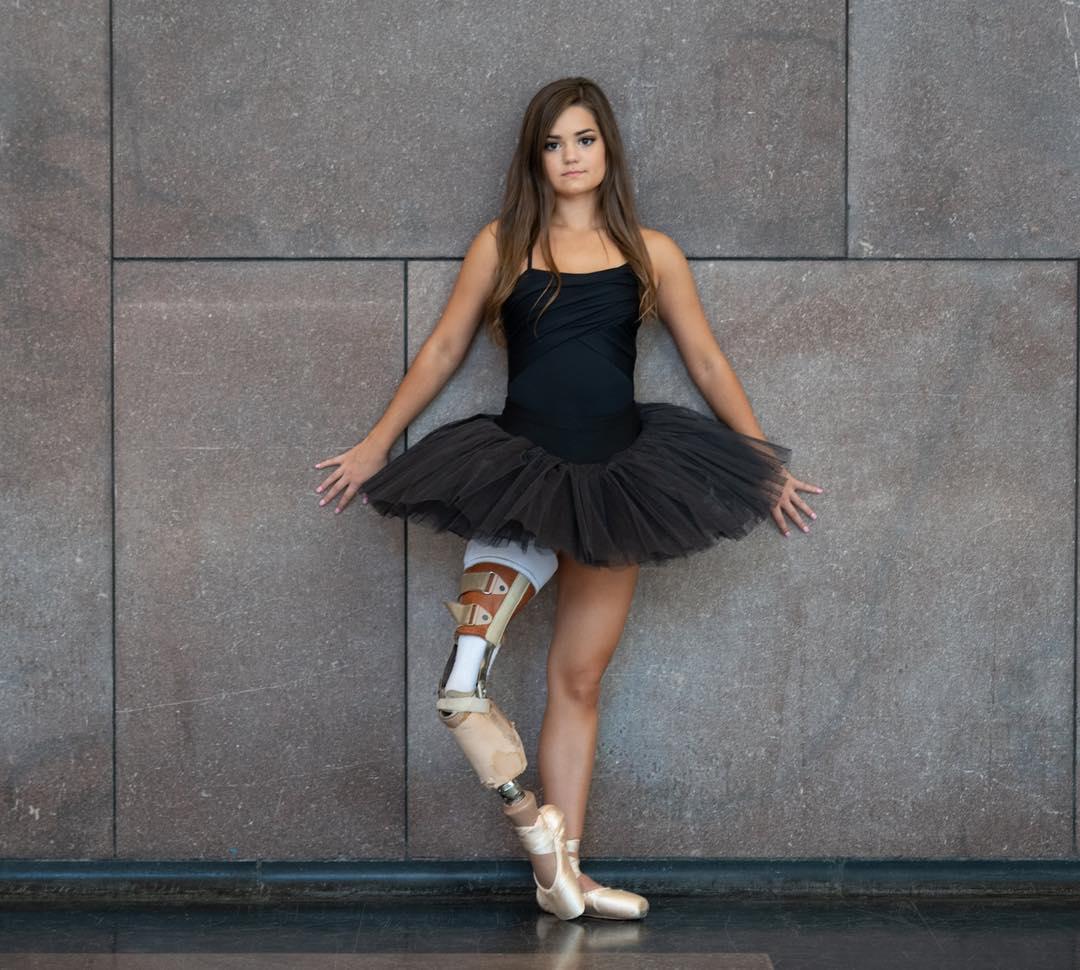 Kiedy zabiorą ci nogę – zacznij tańczyć!
