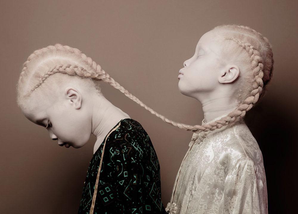 Bliźniaczki albinoski fenomenem w świecie mody