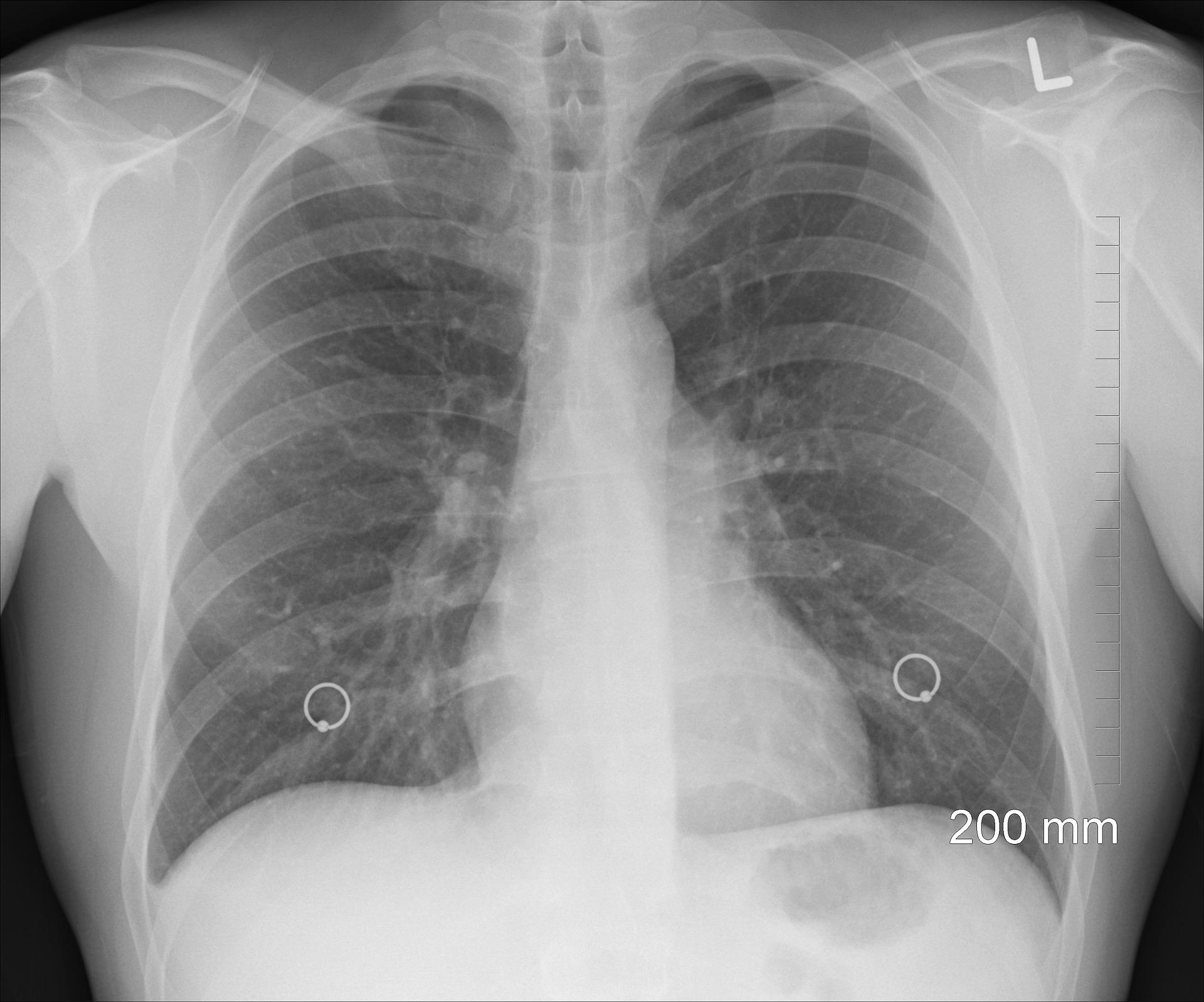 Rok 2020 będzie rokiem raka płuca