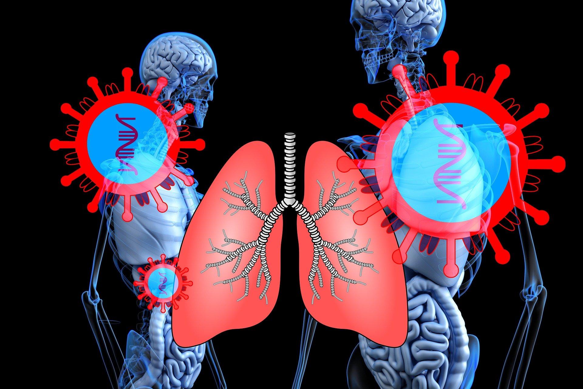 COVID-19 najbardziej zagraża osobom z chorobami oddechowymi