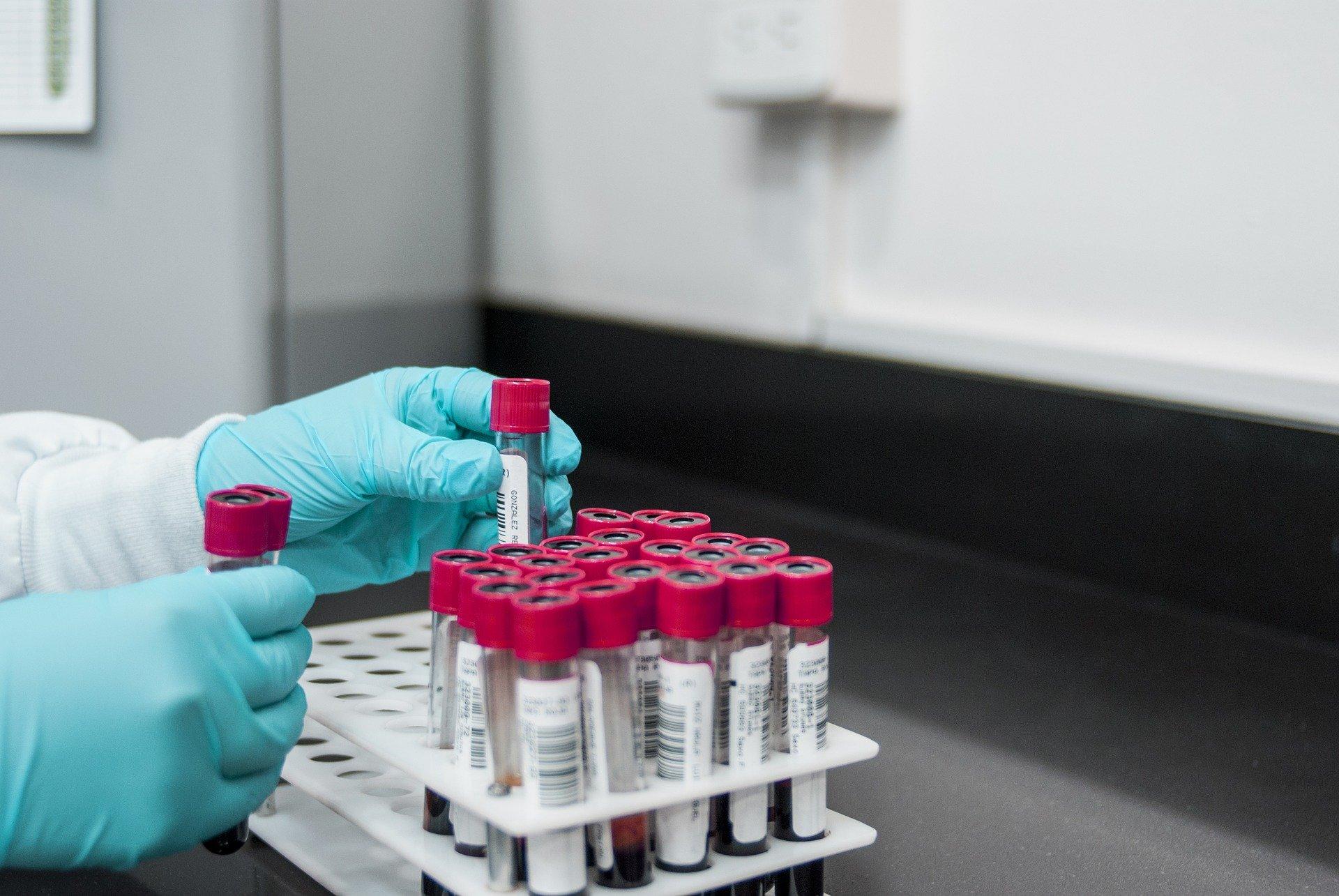 EMA rozpoczęła badanie przypadków zakrzepów krwi po podaniu szczepionki Johnson & Johnson