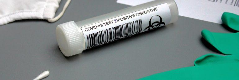 Ekspert: Objawy neurologiczne zwiastują ciężki przebieg COVID-19