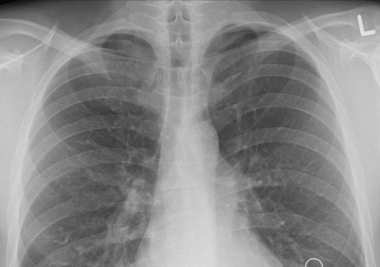 Nowe odkrycie pokazuje, dlaczego COVID-19 uszkadza płuca